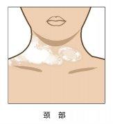 昆明白癜风专科医院-昆明白癜风皮肤病医院颈部白癜风